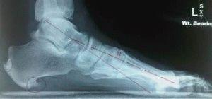 Нарост на кости пятки