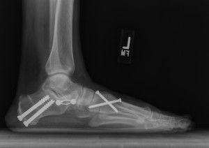 операция на стопы ног плоскостопие