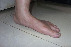 Плоскостопие у больного