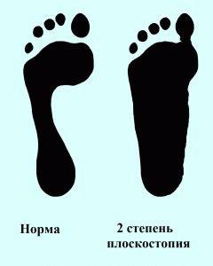 2 степень плоской стопы