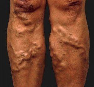 Запущенный случай варикоза