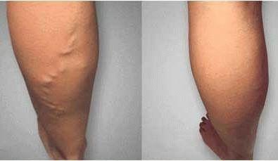 Самые читаемые статьи: Лечение варикоза гель