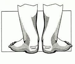 Вальгус стопы
