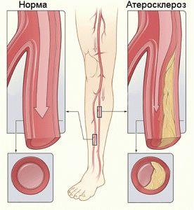 Атеросклероз у пациента