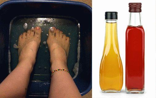 Яблочный уксус при лечении грибка ногтей на ногах