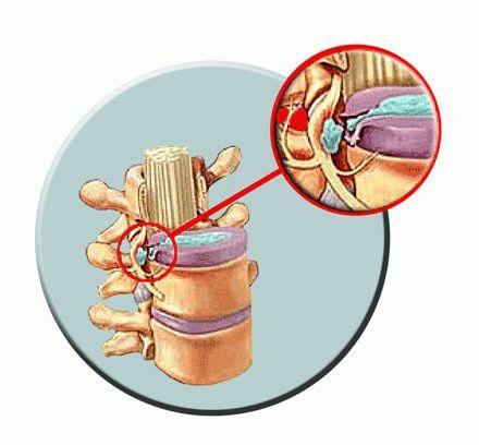 Самые читаемые статьи: Лечение варикоза в улан-удэ