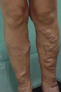 узелки на венах ног