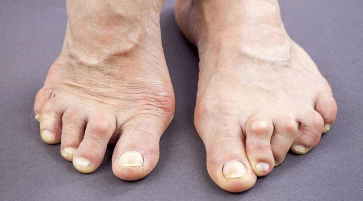 соль от ревматоидный артрит