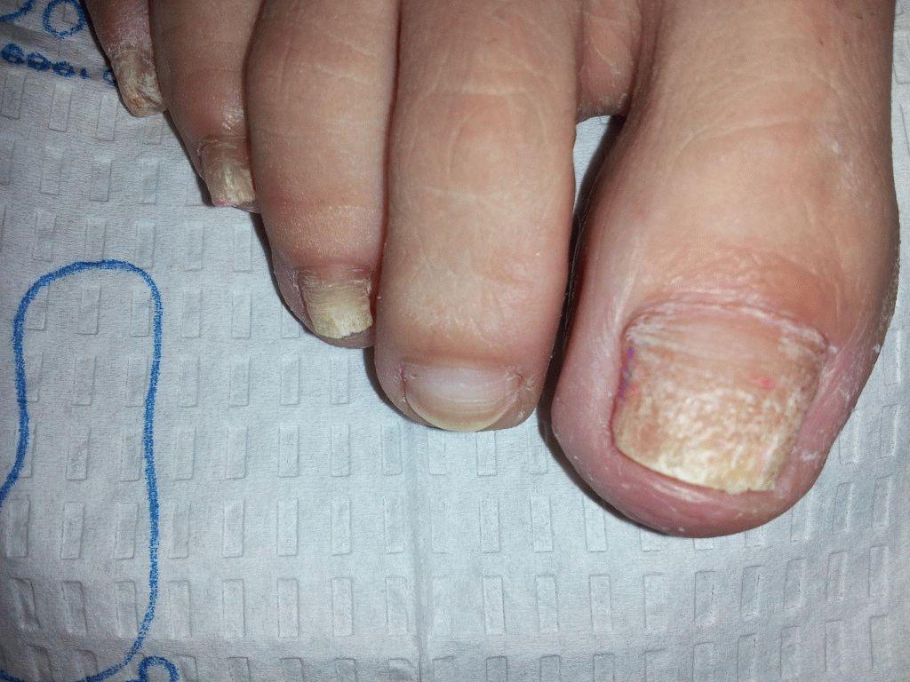Рецепты лечения грибка кожи и ногтей