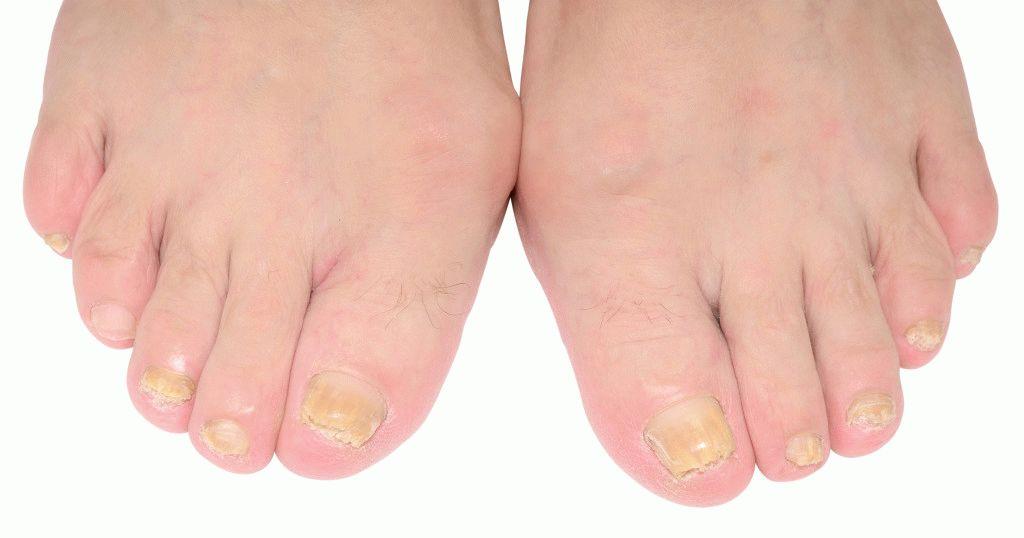 Как вылечить грибок на ногах фурацилином