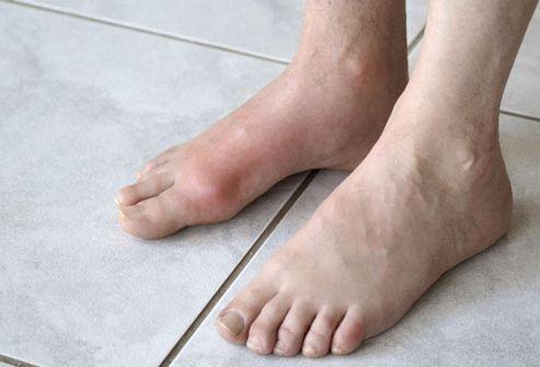 У ребенка шишки на ногах под кожей фото