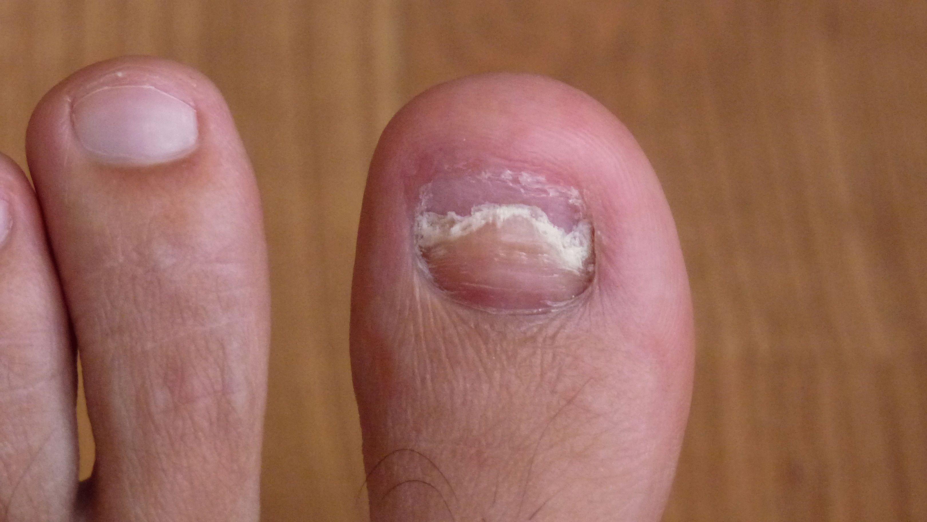 грибок ногтей препараты для лечения