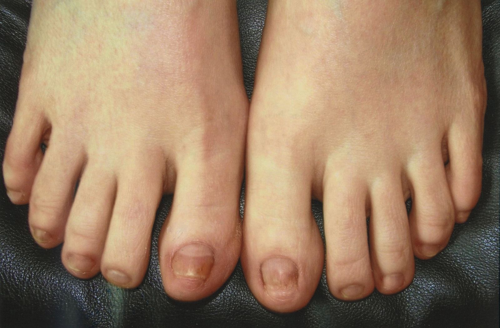 Очень тонкие ногти на руках лечение