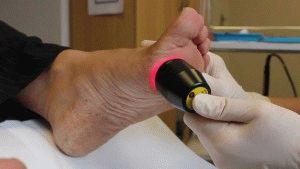 Лечение шишки лазером