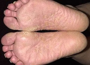 Кандидоз на ногах
