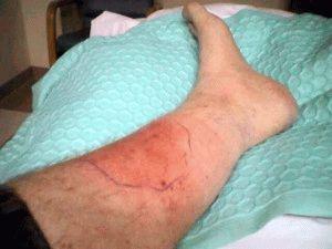 Кровяной тромб в ноге