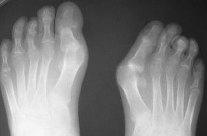 Сустав с псориатическим артритом