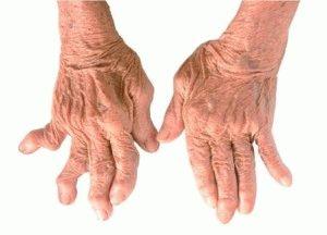 Ревматический вид артрита