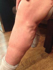 Отёчность ног