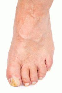 Грибок поразил ногти