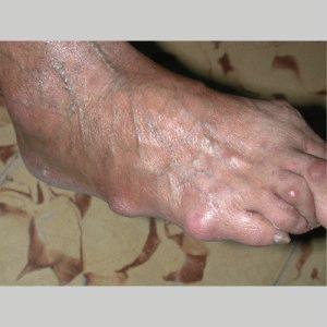 Узелковый артрит