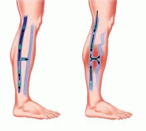 Венозная система ног