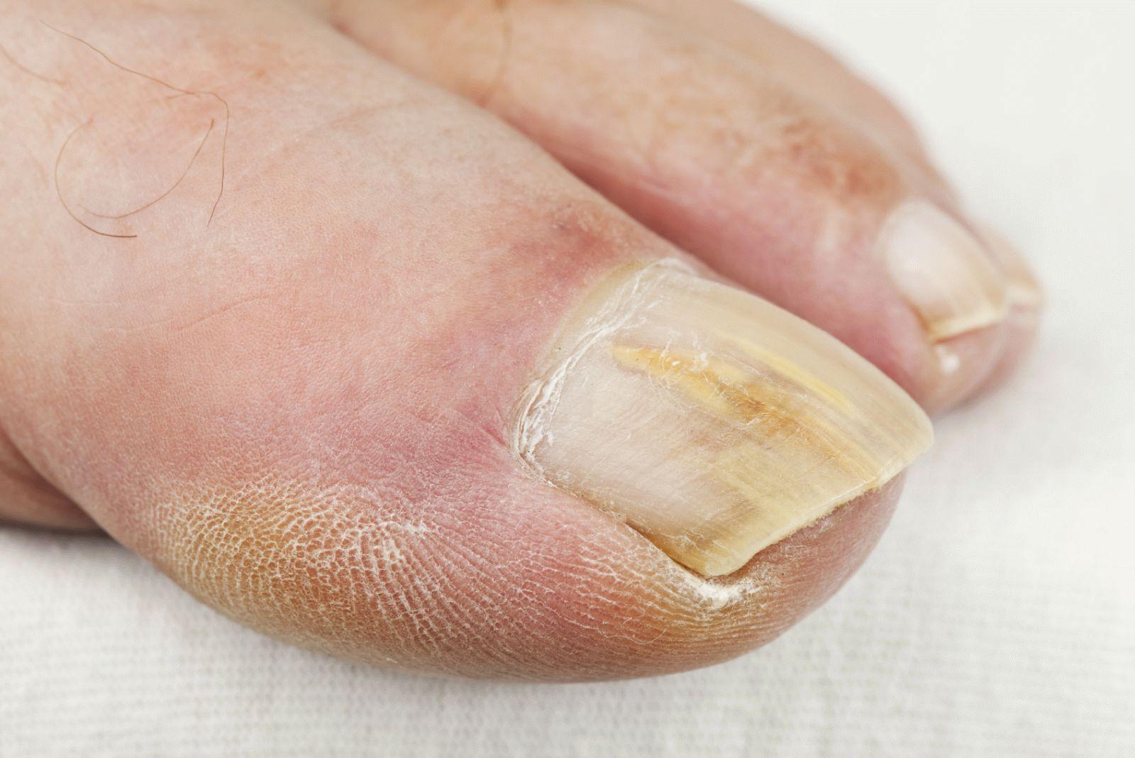 Как вылечить ноготь на ноге на большом пальце ноги
