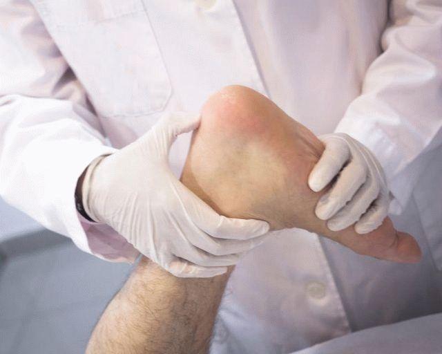 Опухоль ноги в щиколотке гигрома