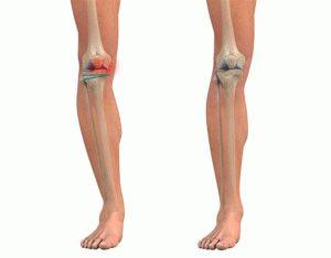 Деформирование ног