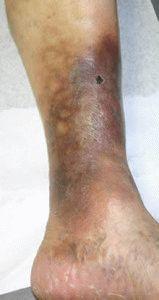 Трофические язвы ног