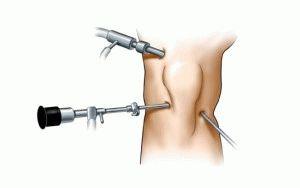 Артроскопия сустава