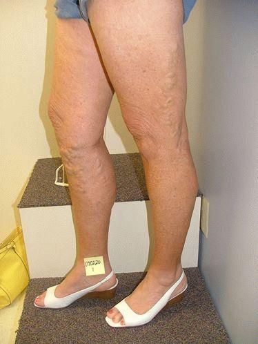 Основные симптомы варикоза матки методы лечения и способы профилактики