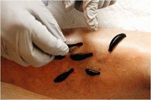 Гирудотерапия варикоза