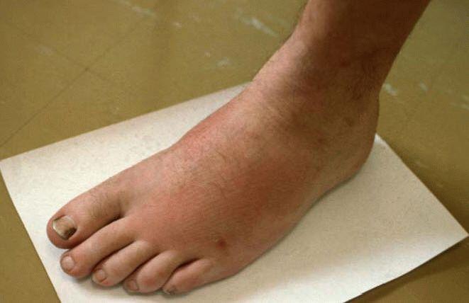 Острый артрит суставов: патогенез, группа риска, лечение