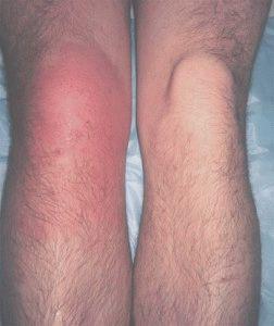 Артрит инфекционного типа