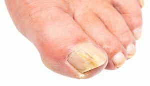 Микоз ногтей