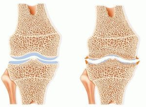 Артрозо-артрит колена