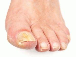 Поражение ногтей грибком