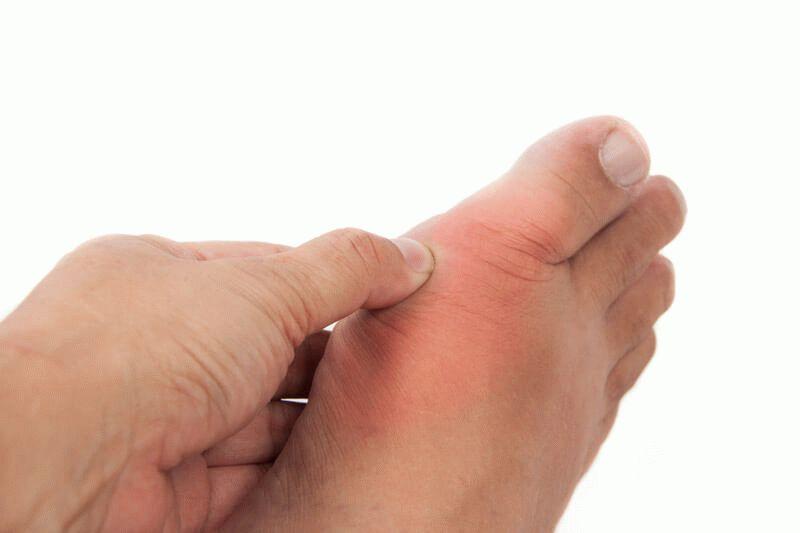 Подагрический артрит голеностопного сустава: симптомы и лечение