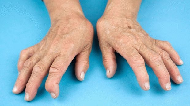 Могут ли дать инвалидность при ревматоидном артрите