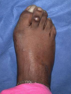 Препарат для лечения синдрома беспокойных ног