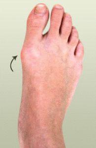 Бунион ног
