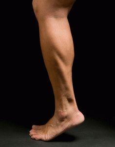 Тендинит ног