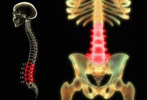 Боль в нижних отделах позвоночника