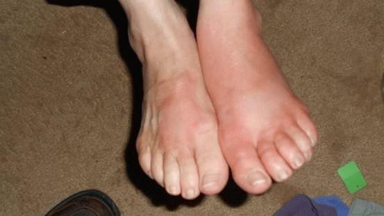 Нога опухла лечение в домашних условиях