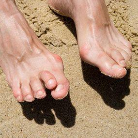 Почему болят пальцы на ногах при ходьбе