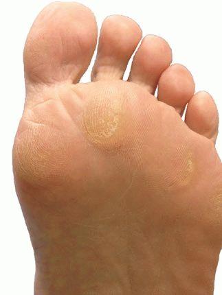 Болит сустав стопы левой ноги