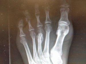 Плесневая кость