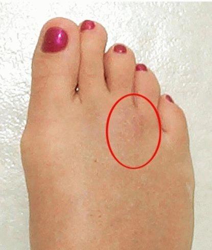 Что делать если болит стопа после ходьбы 24