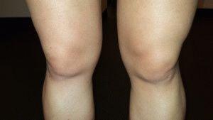 Отёки мышц в ногах